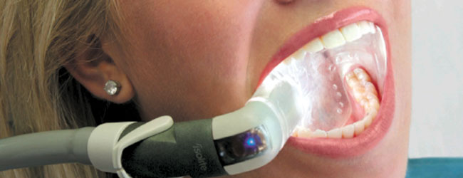Dentist Lead Sd Northern Hills Dental Isolate Technology