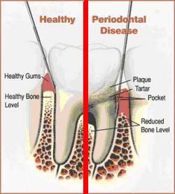 Image showing healthy tooth and gums and periodontal disease.