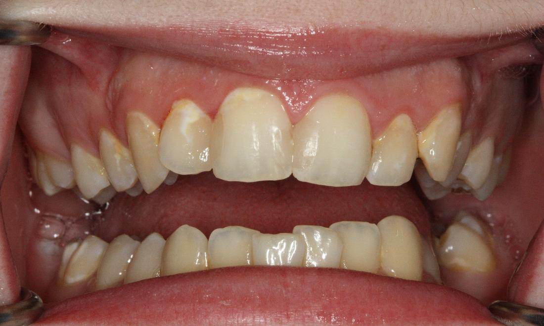 Anterior White Fillings
