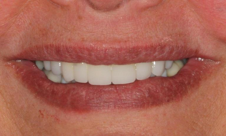 Esthetic-Anterior-Crowns-After-Image
