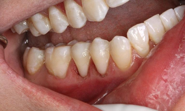 White-Fillings-After-Image