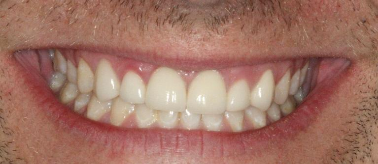 Esthetic-Anterior-Crowns-Before-Image