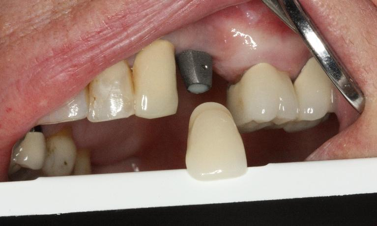 Implant-Crowns-Before-Image