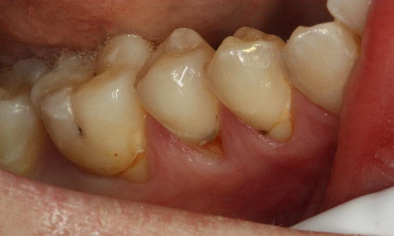 White-Fillings-Before-Image