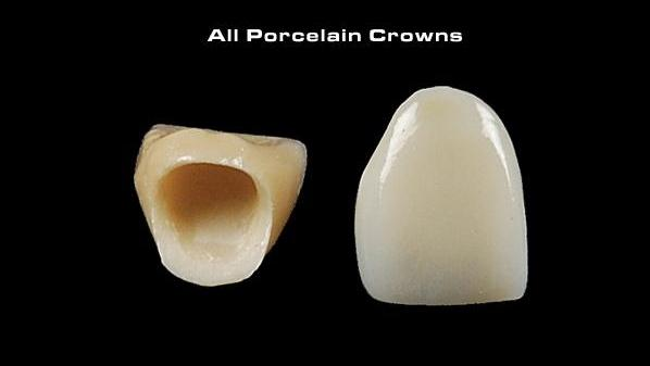 Picture of an all-porcelain crown.