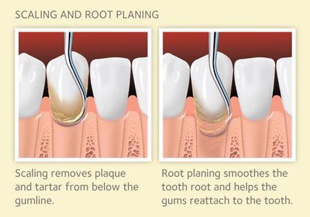 Image showing scaling and root planing procedure