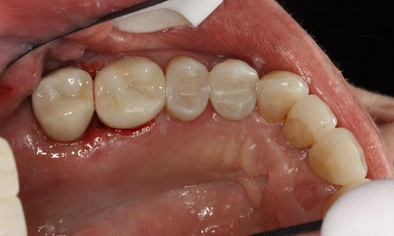 All-Porcelain-Crowns-After-Image