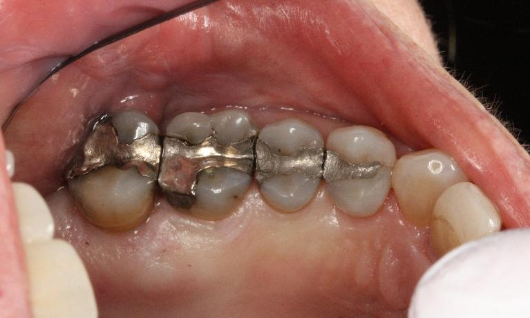 All-Porcelain-Crowns-Before-Image